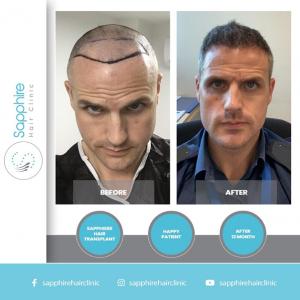 Sapphire-Hair-Clinic-1
